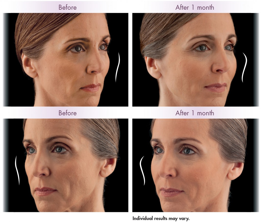 JUVEDERM VOLUMA XC Manhattan New York