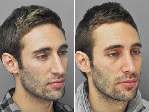 Rhinoplasty NYC | Best New York City Nose Job
